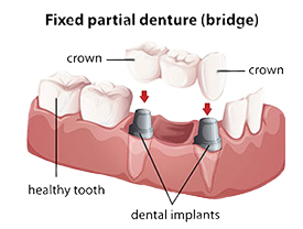 Dental Bridge | Seminole Dental | Monica M. Doyle DMD | Seminole, FL 33772