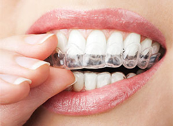 Invisalign | Seminole Dental | Monica M. Doyle DMD | Seminole, FL 33772