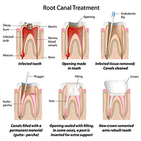 Root Canal Therapy | Seminole Dental | Monica M. Doyle DMD | Seminole, FL 33772