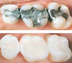 White Filling | Seminole Dental | Monica M. Doyle DMD | Seminole, FL 33772